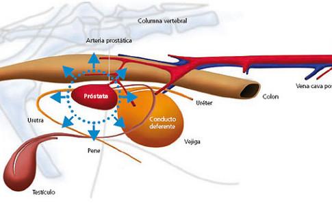Próstata inflamada en perros